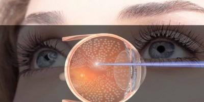 sante-visuelle-le-gouvernement-compte-integrer-des-photocoagulateurs-au-laser-dans-les-hopitaux